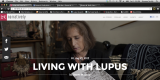 NARRATIVELY: Living with Lupus